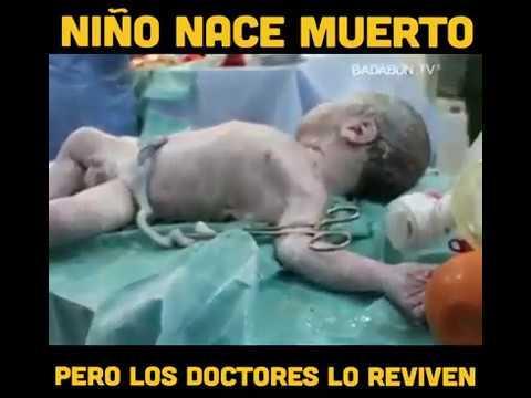 Mira lo que hacen estos doctores con este bebé que nació muerto, pero Lo Reviven